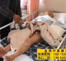 脑出血3个月的78岁患者